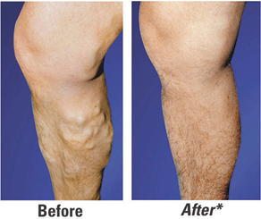 Before and after Leg surgery Image